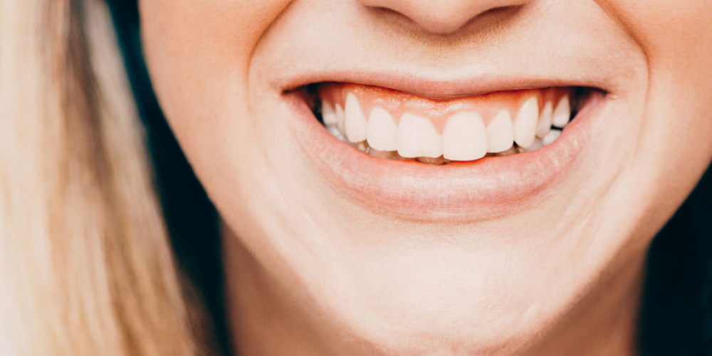Когато вместо 32 имаш 34 зъба – случаят на едно 9-годишно дете