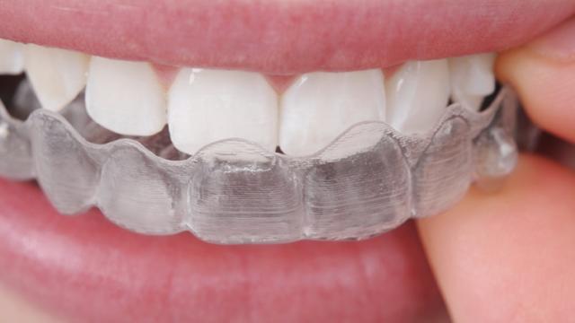 Как се поставят зъбни импланти? Етапи при имплантологично лечение