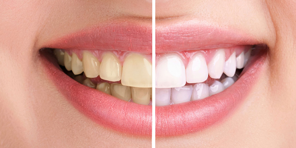 Препоръки за поддържане на здрави и красиви зъби по време на бременност